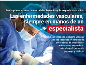 Varices, un problema de Angiologia y Cirugia Vascular